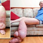 Lymphatic Filariasis - Causes, Symptoms and Treatment